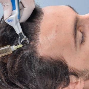Plasma Hair em Moema e Jardins