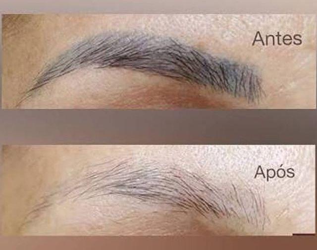 Remoção de Micropigmentação de sobrancelhas 1 sessão